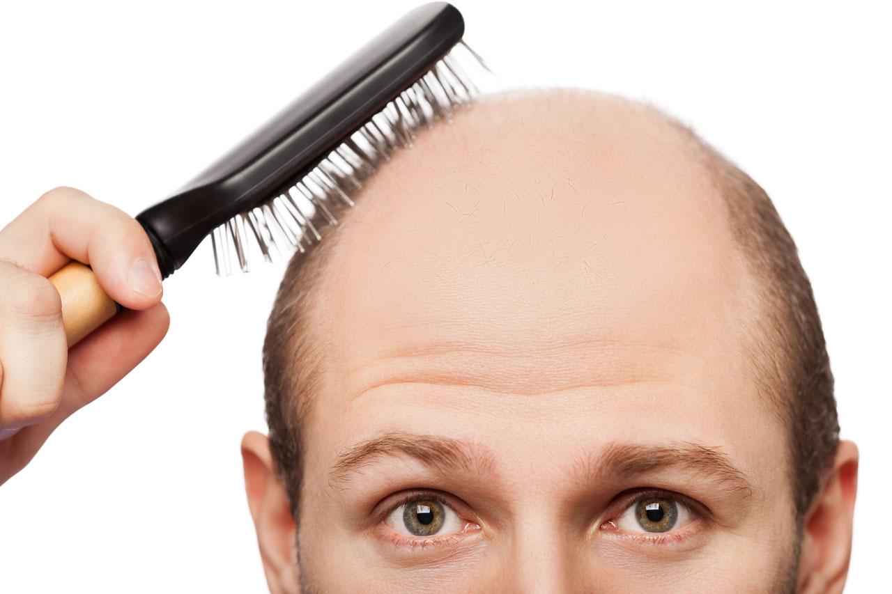 Kết quả hình ảnh cho tóc rụng sẹo hình vẽ